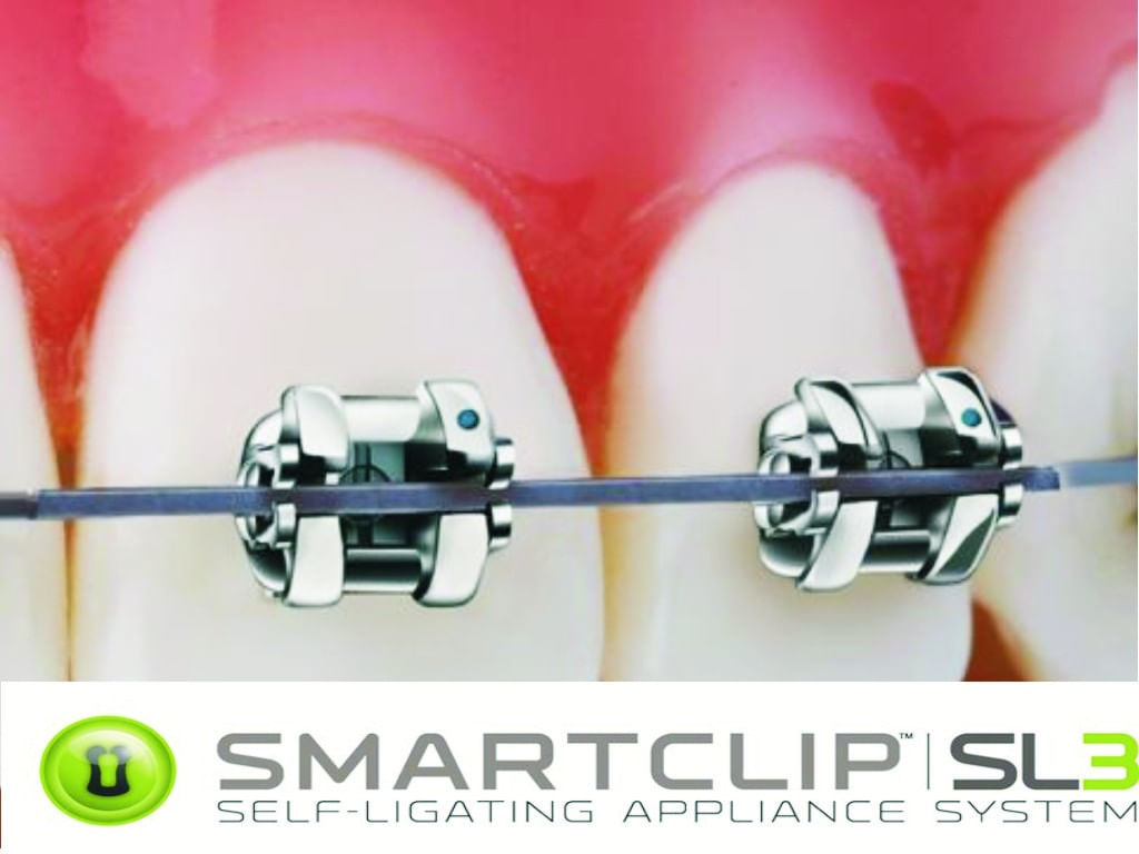 Kit-De-Braquetes-Autoligados---Smart-Clip---Prescricao-ROTH-.022\\----C--Gancho-Nos-Caninos-E-Pres.